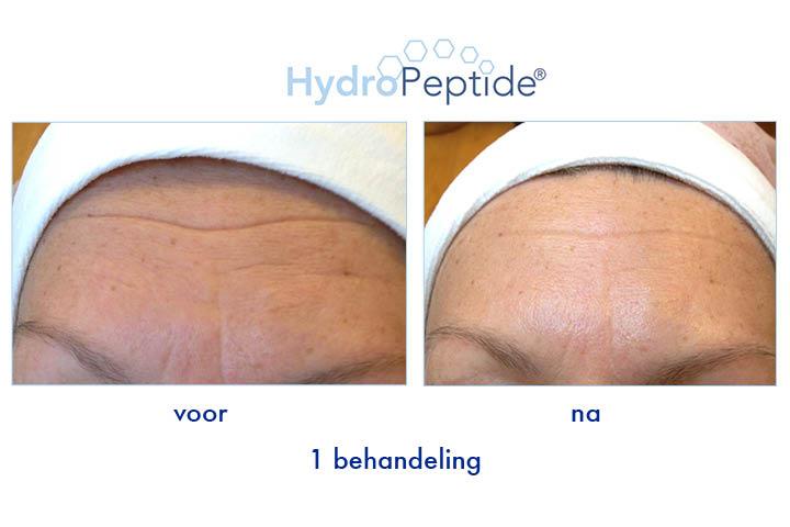 Hydropeptide_voorNa2